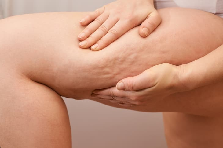 cellulite-reduction-img-1