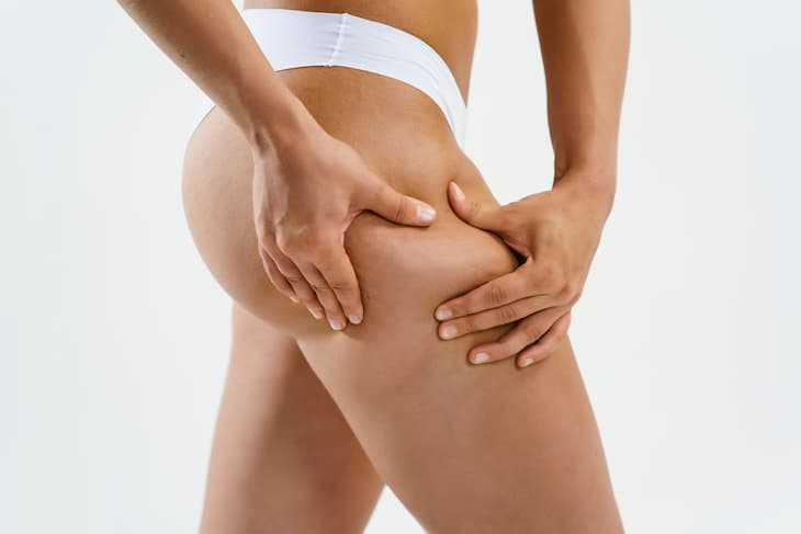 cellulite-reduction-img-4