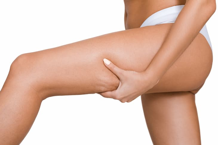 non-surgical-cellulite-treatments-img-1