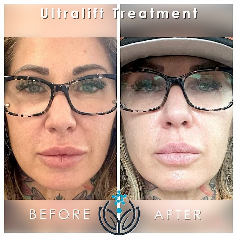 Before and after UltraLift (1)