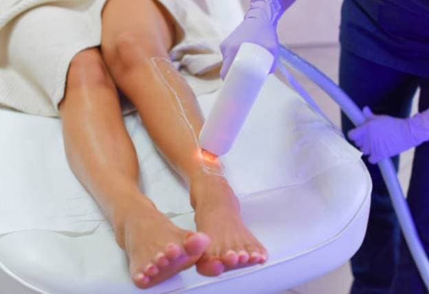 laser-hair-removal-img-1